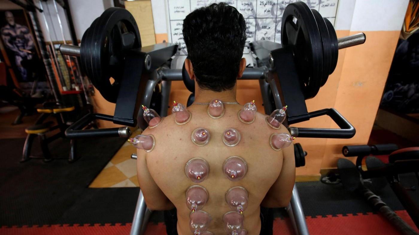 FOTO Cerchi rossi sui corpi degli atleti? E' l'effetto del 'cupping'