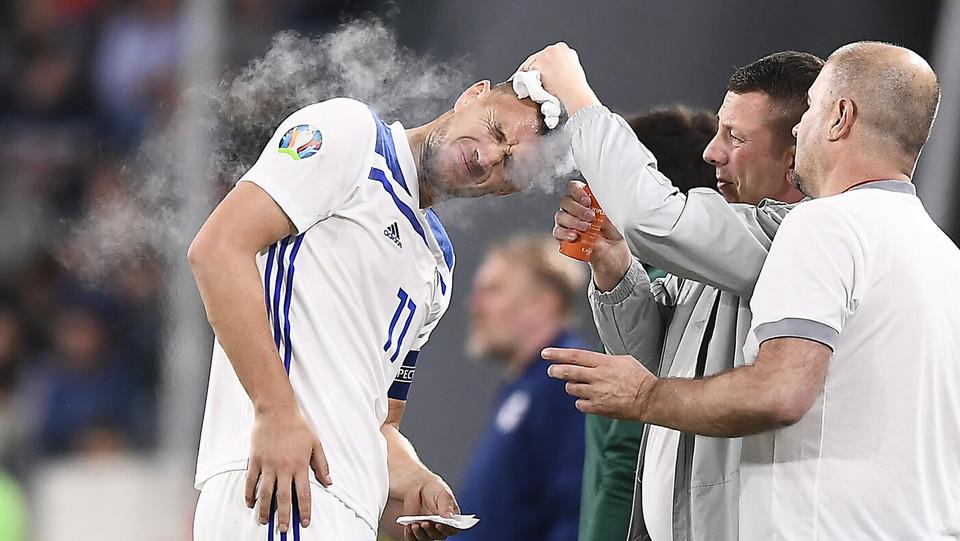 Dzeko, ferita alla testa dopo uno scontro aereocon Chiellini ©